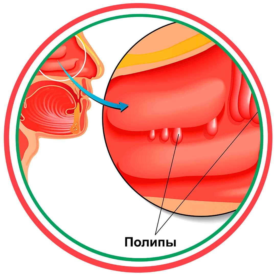 Особенности выявления полипозного риносинусита